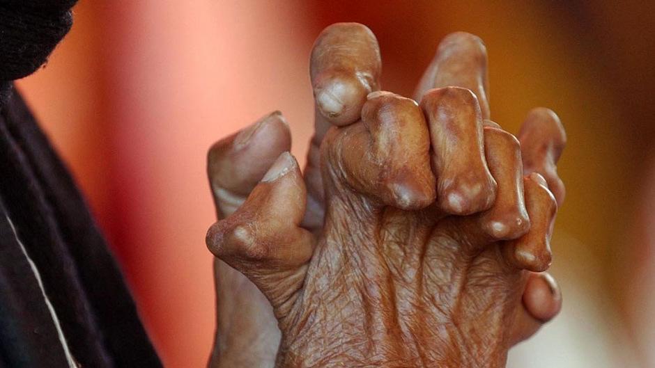 Von Lepra gezeichneten Hände, aufgenommen in einer Leprastation im indischen Jaipur. (Symbolfoto)