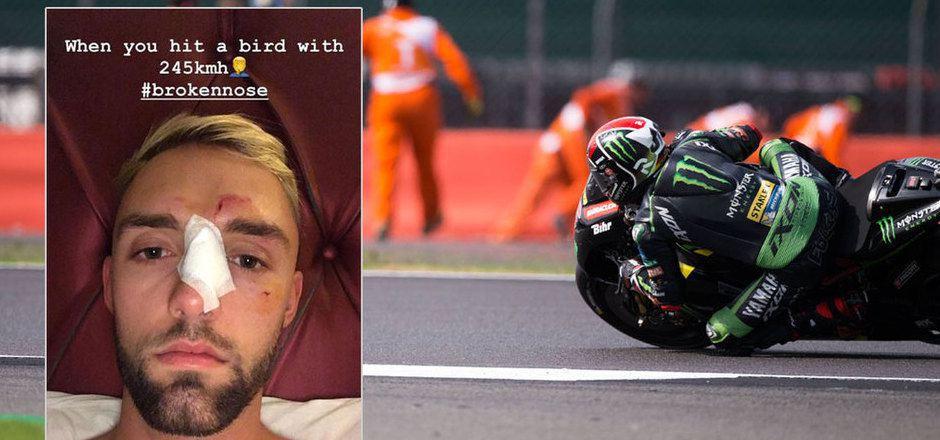 Nach seinem schwerenfolgen Unfall postete Jonas Folger eine Insta-Story mit seinen Verletzungen.