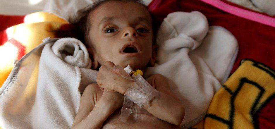 Für Hunderttausende Kinder ist die gegenwärtige Situation dramatisch.