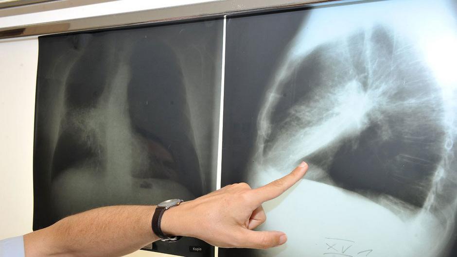 Die Patientin zeigte Symptome, die typisch für durch Rauchen ausgelösten Lungenkrebs sind.