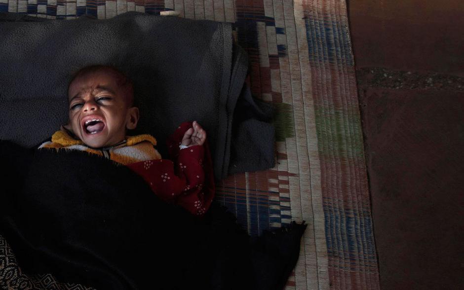 """Noch immer hungern weltweit mehr als 800 Millionen Menschen. Von """"verborgenem Hunger"""" - Mangelernährung - sind zudem mehr als zwei Milliarden Menschen betroffen."""