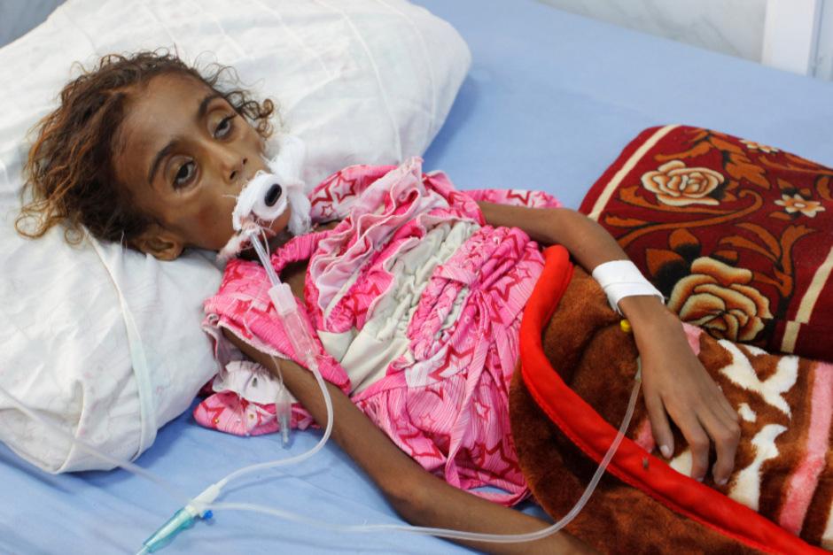 Ein siebenjähriges Mädchen in einem Krankenhaus in Hodeidah. Es starb an Unterernährung.