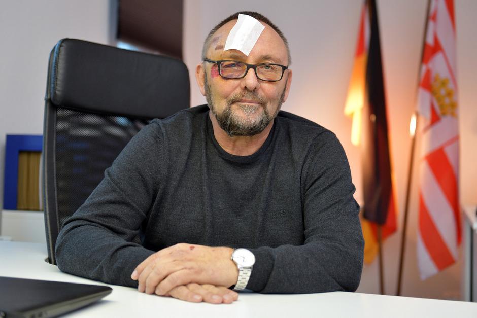 Der Politiker veröffentlichte Fotos seiner Verletzung.