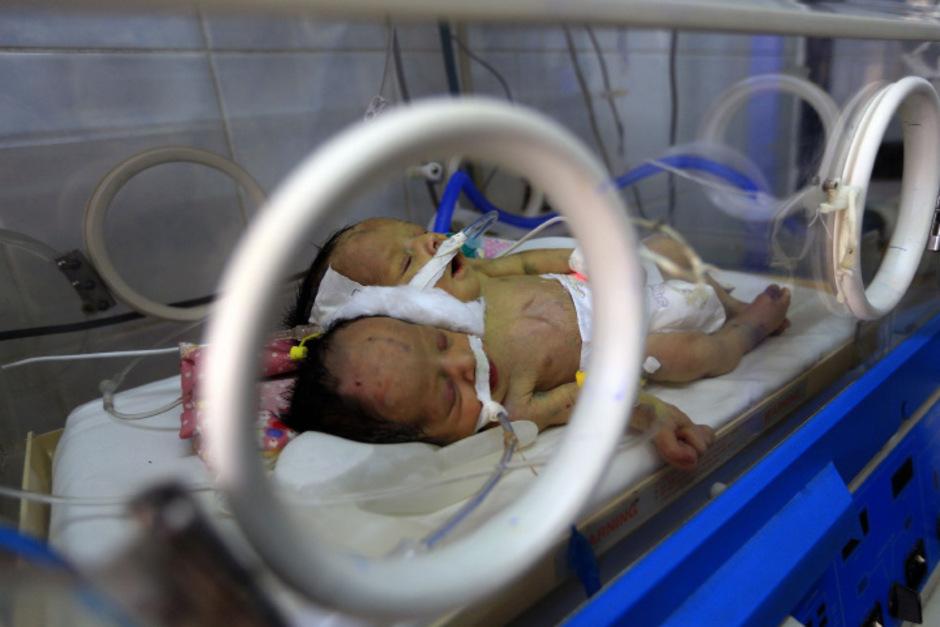 Den Ärzten in Sanaa fehlte es nach eigenen Angaben an der nötigen Ausstattung, um die siamesischen Zwillinge trennen zu können.