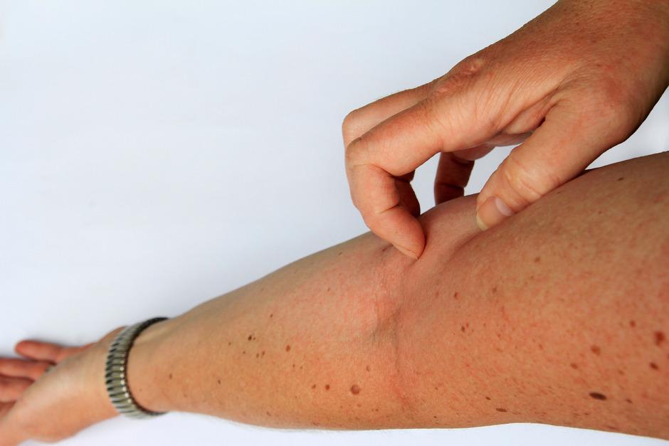 Forscher sind den Ursachen für Neurodermitis weiter auf der Spur.
