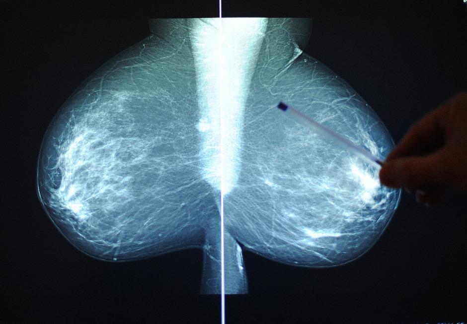 Gynäkologische Krebsarten wie Brustkrebs sind nicht mit dem TyG-Index erklärbar. (Symbolfoto)