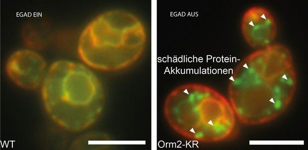 Mikroskopie Bilder von Bäcker-Hefe