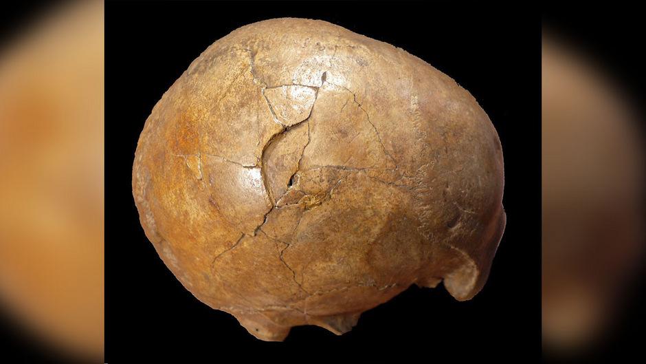 Eine neue Analyse des versteinerten Schädels eines Mannes aus der Altsteinzeit legt nahe, dass er eines gewaltsamen Todes gestorben ist.