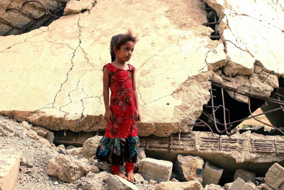 Vor allem Kinder leiden an den Folgen des Krieges. 2,1 Millionen sind akut mangelernährt.