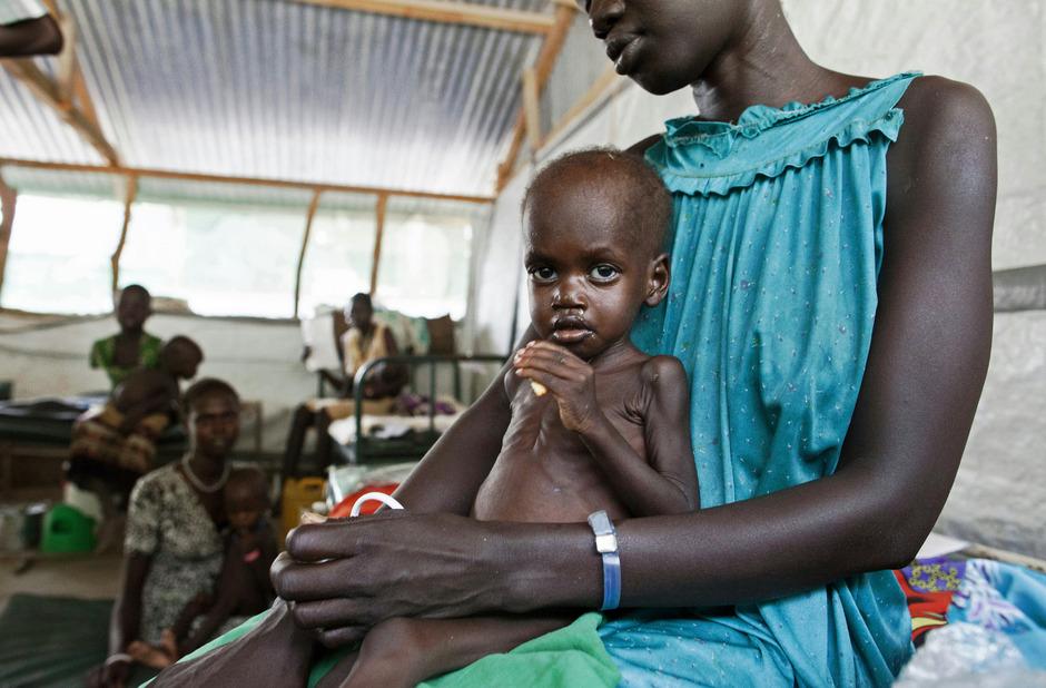 Dürrefolgen könnten für Kinder in Zukunft noch gravierender ausfallen. (Symbolbild)