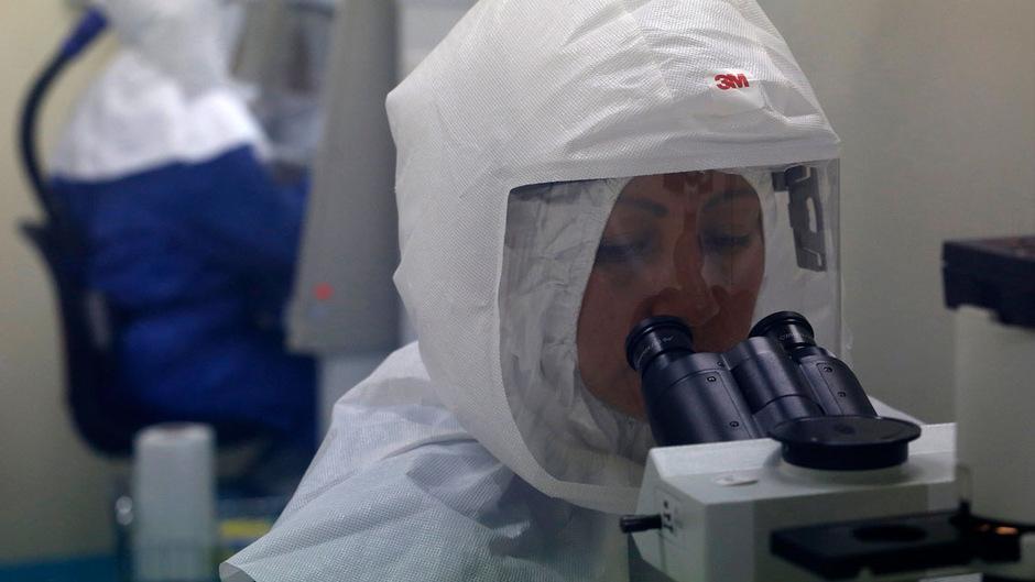 Der Ebola-Virus gehört zu den gefärhlichsten Krankheitserregern der Welt.