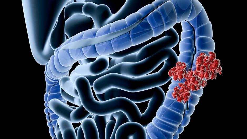 In westlichen Ländern sind immer mehr junge Menschen von Darmkrebs betroffen. (Symbolfoto)