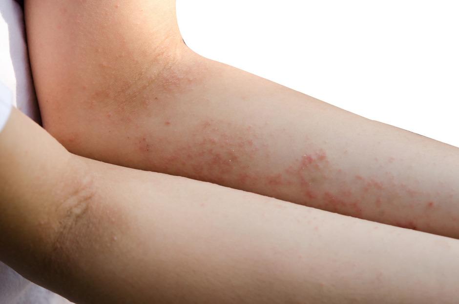 Der Befall durch Krätzmilben löst bei den Betroffenen einen starken Juckreiz aus. Eine Behandlung schlägt binnen weniger Stunden an.