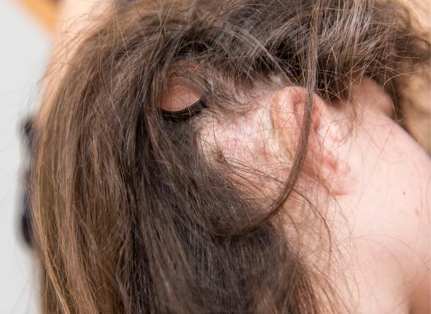 Ein Knopf über Selinas Ohr ist mit dem Hörgerät-Implantat verbunden.