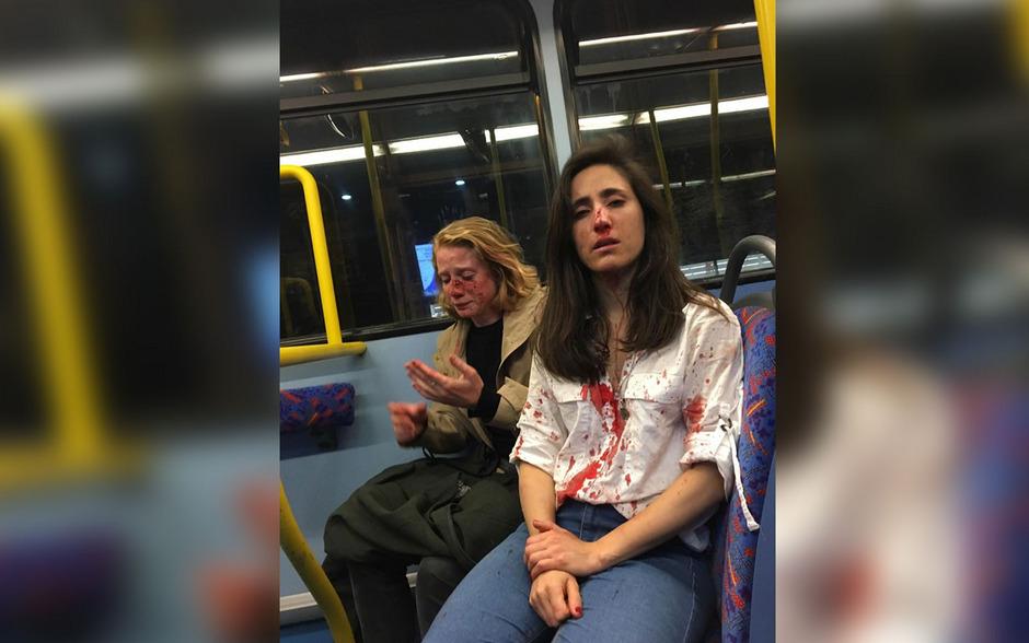 Dieses Foto der beiden jungen Frauen mit blutverschmierten Gesichtern und Kleidung schockierte die britische Öffentlichkeit.